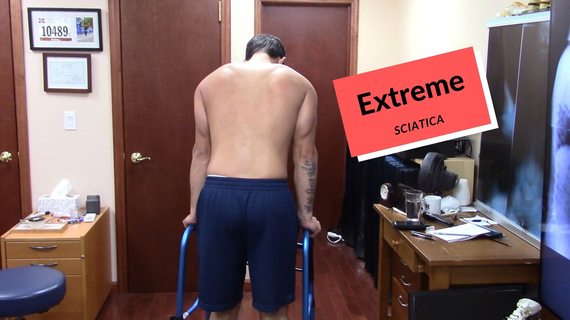 EXTREME Sciatic Pain HELPED by Dr Suh Gonstead Chiropractic NYC
